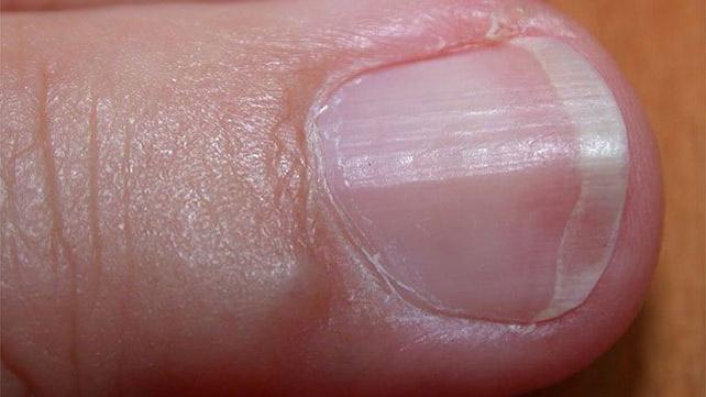Longitudinal ridging nails