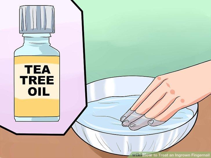 Image titled Treat an Ingrown Fingernail Step 7