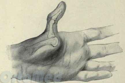 Вибив пальці на руці що робити
