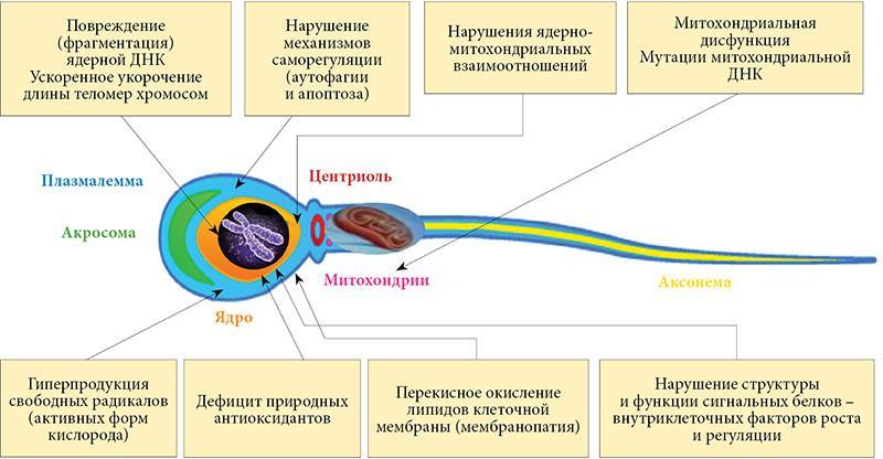 Лейкоспермия что это такое