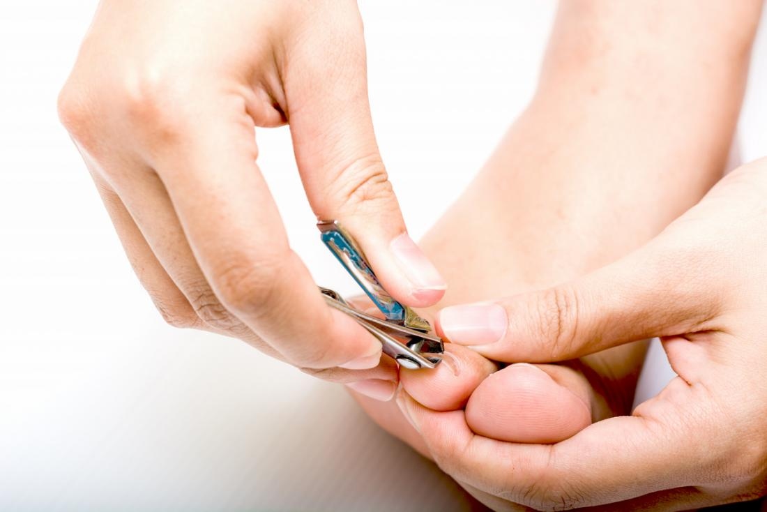 Fungal infection of the nails