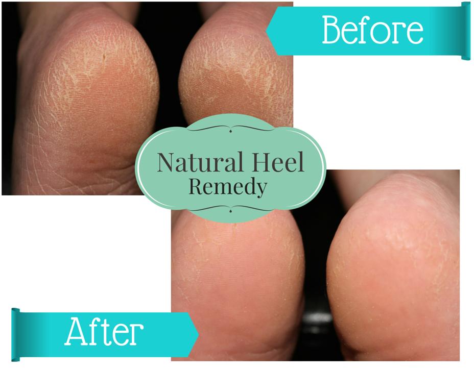 DIY Natural Heel Remedy