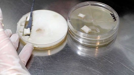 A plate-to-plate mycelium tissue transfer on agar media