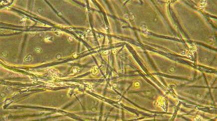 Pleurotus ostreatus hyphae at 100x magnification