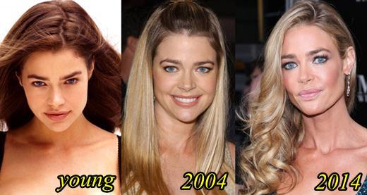 Denise richards plastic surgery face