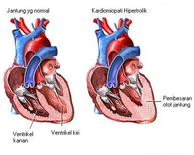 Obat Penebalan Otot Jantung