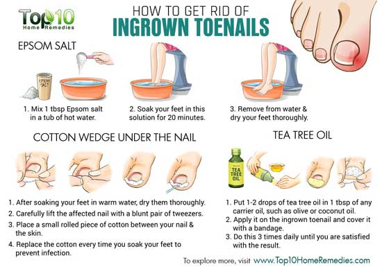 Remedies for ingrown toenails
