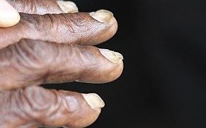 Concave nails
