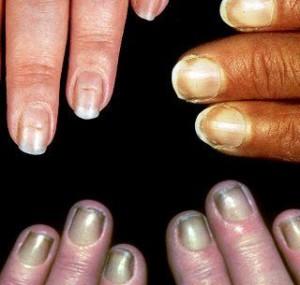 Fingernails fungus