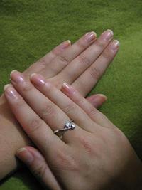 Dark lines under fingernails