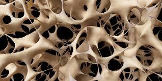 Obat Tradisional Tulang Keropos