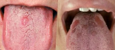 Язвы на языке из-за сифилиса
