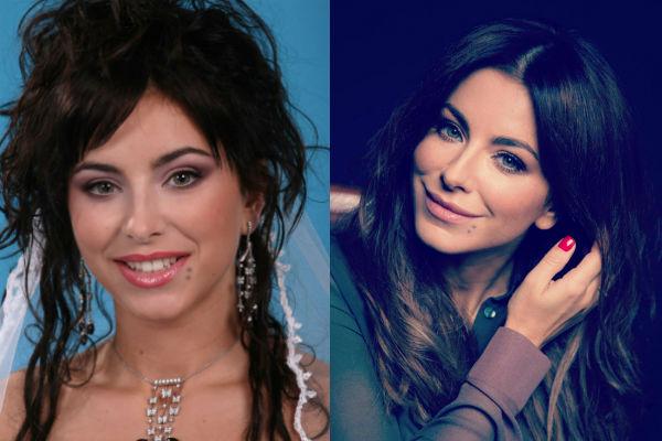 Как менялась певица Ани Лорак в результате пластики фото