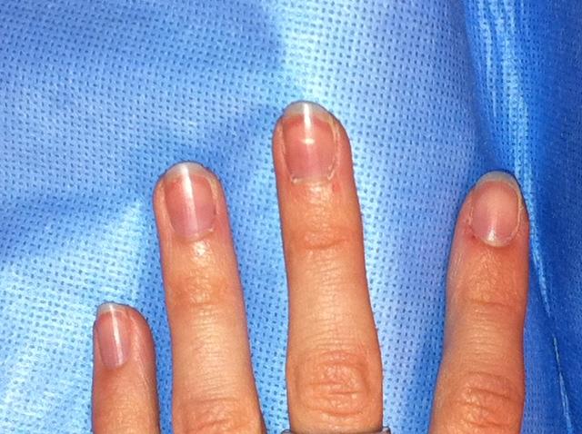 Finger nails blue