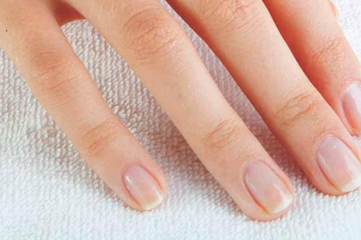 Yellow fingernails causes