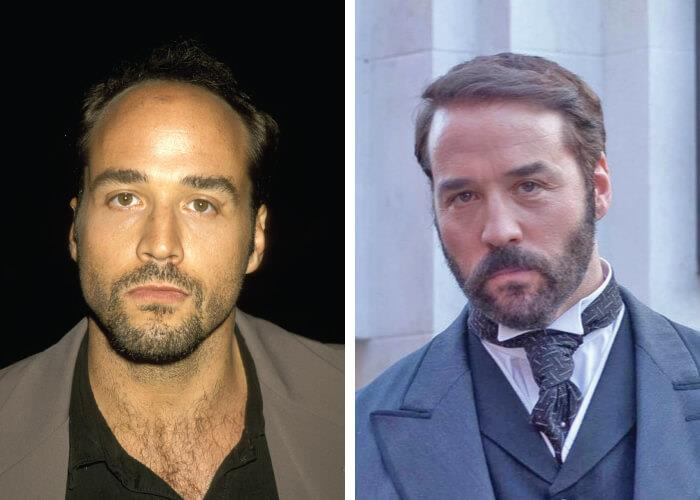 Celebrities who had hair transplants