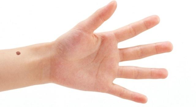 Значение родинки на левой руке