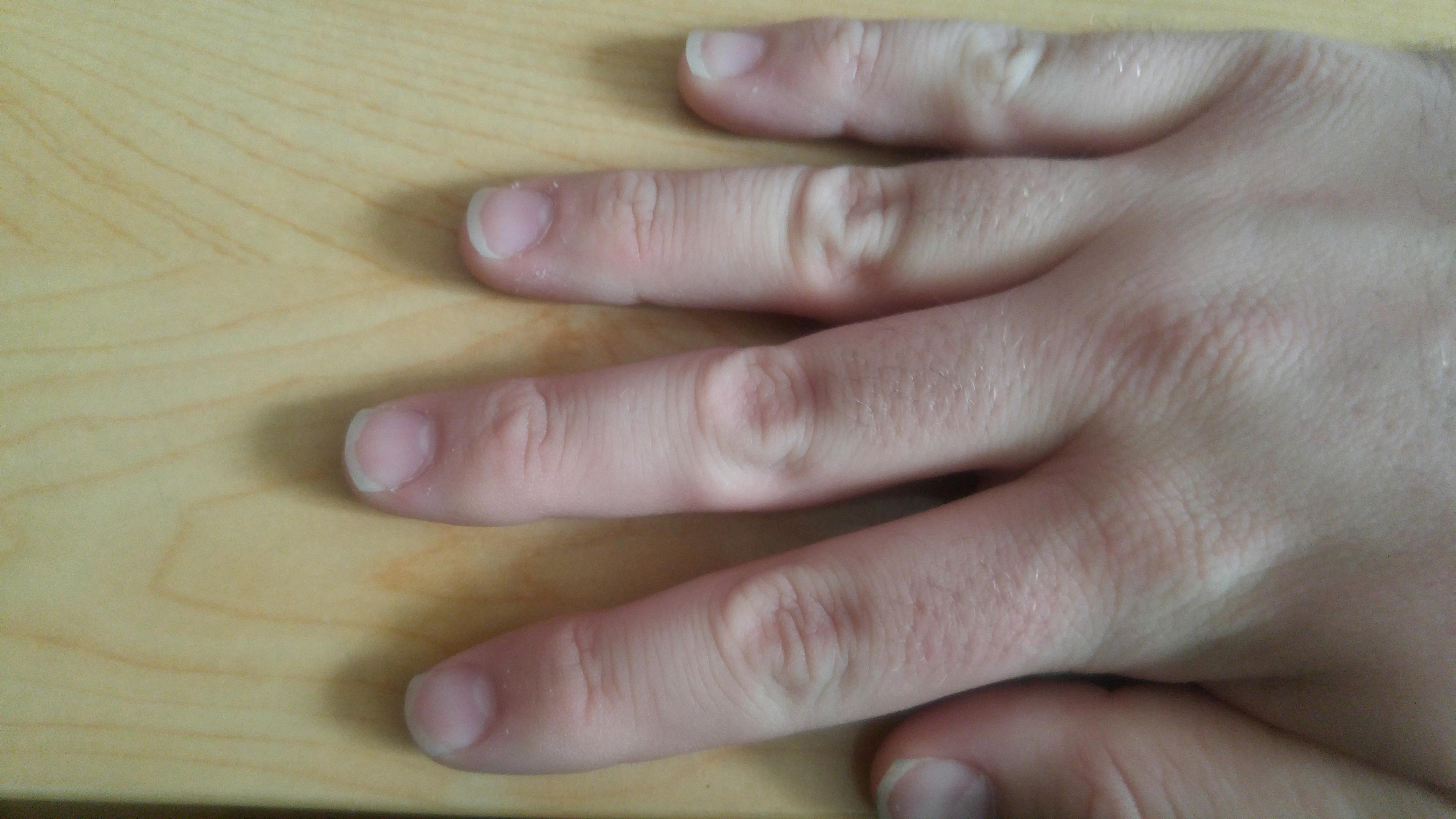 Messed up fingernails