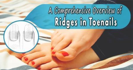 Horizontal ridges on toenails