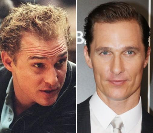 Celebrities with receding hairlines