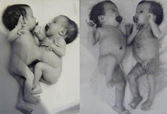 Алина и алиса игнатьевы сиамские близнецы