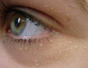 Как убрать белые точки под глазами в домашних условиях фото
