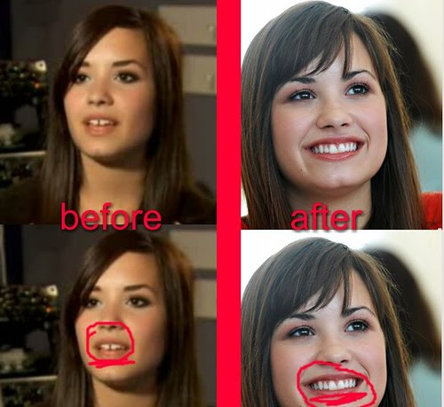 Demi lovato gap teeth before after