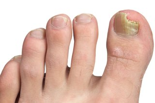 Fungal infection of toe nails