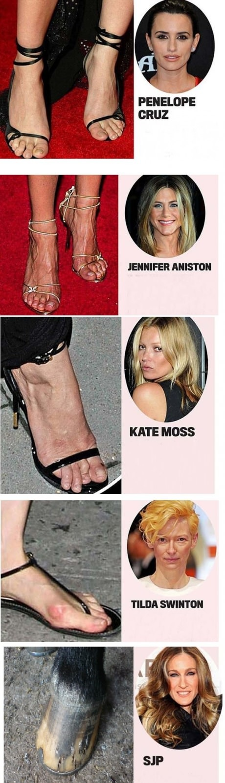 Ugliest celebrities feet