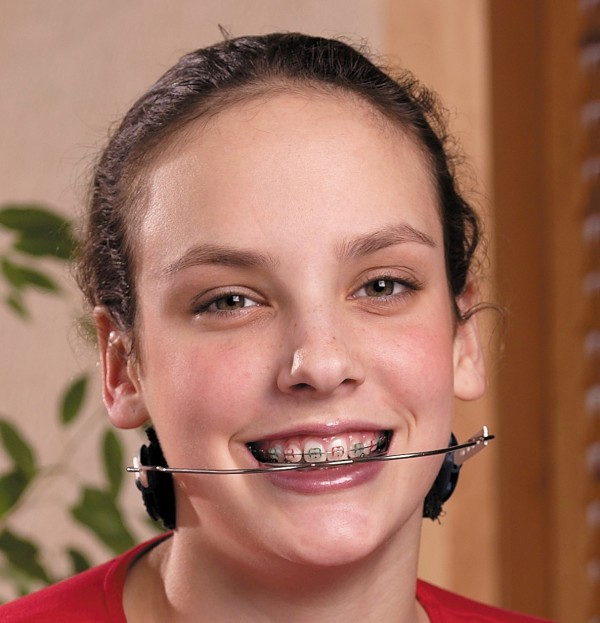 Old Fashioned Braces For Teeth