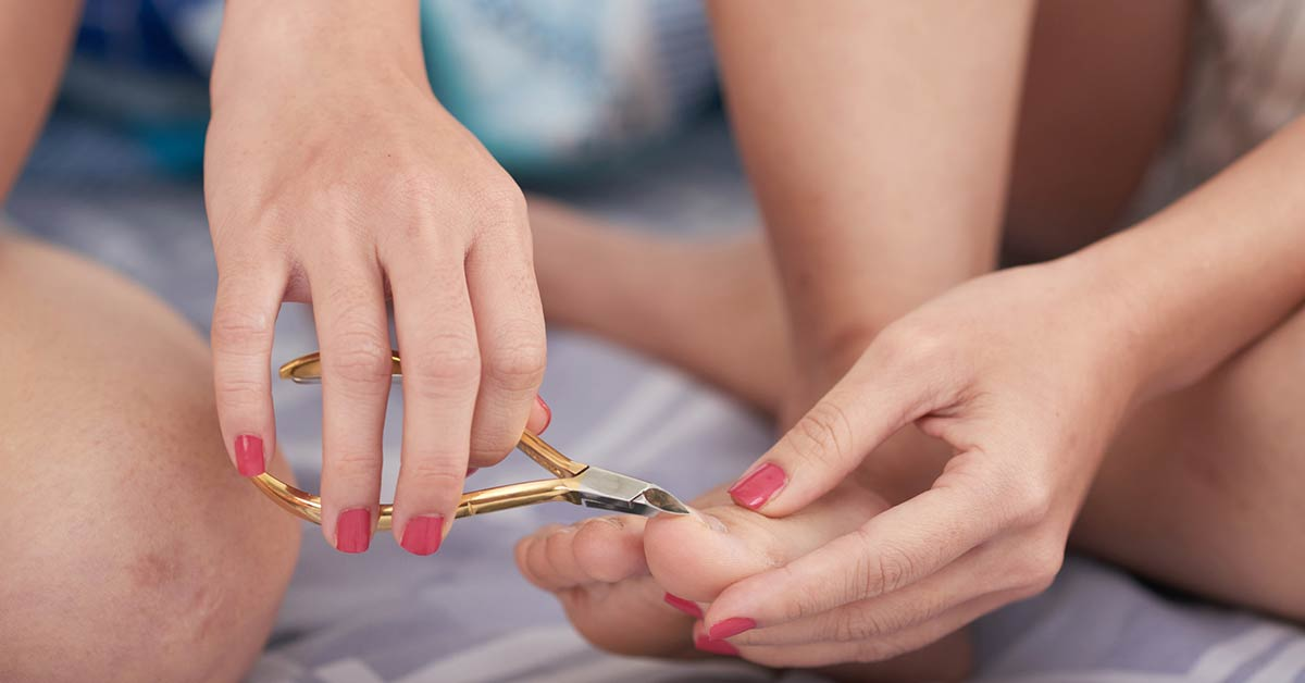How to cut toenails to avoid ingrown toenails