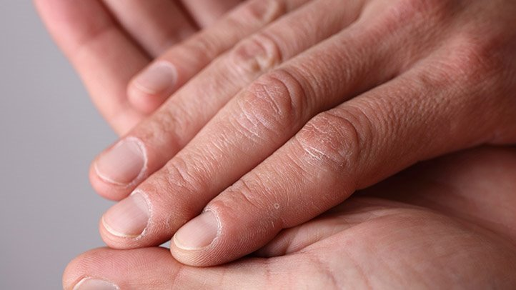 Nails say about your health
