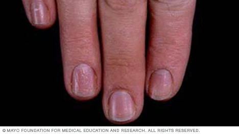 Medical diagnosis fingernails