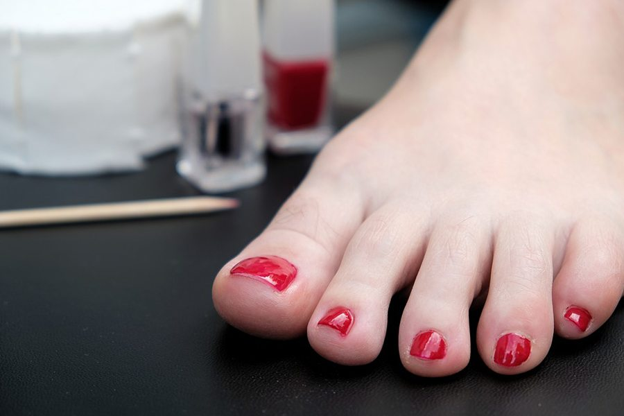 Cracked toenails