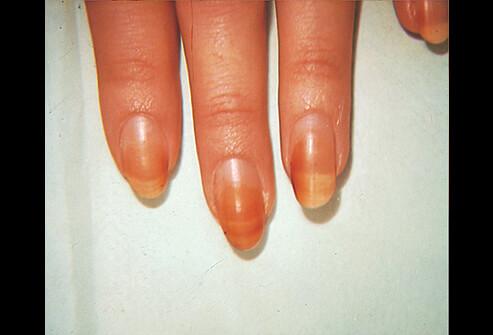 Discoloured fingernails causes