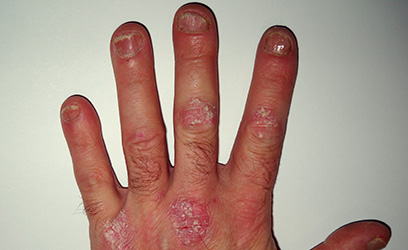 Best treatment for psoriasis of the nails
