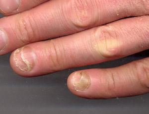 Brittle cracked fingernails