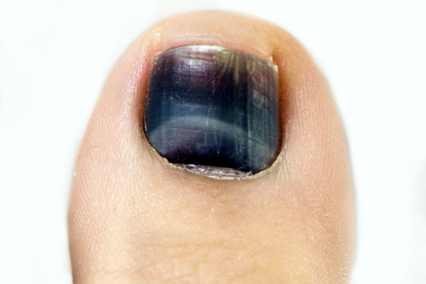 Toenails turning grey