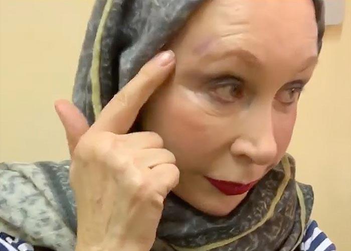 Татьяна Васильева с травмой головы