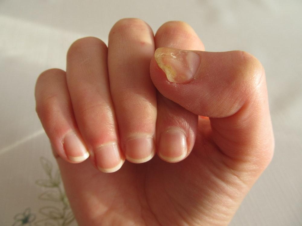 Fungus fingernails