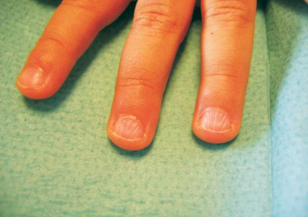Chevron Nail (V-shaped ridging).