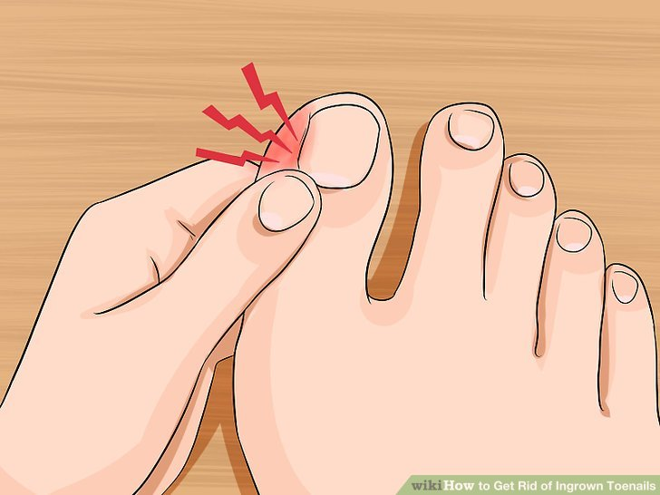 Image titled Relieve Ingrown Toe Nail Pain Step 2