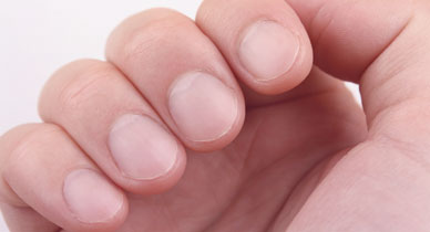 Cupped fingernails