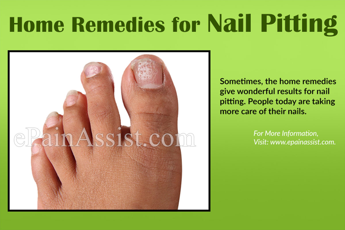 Pictures of pitted nails