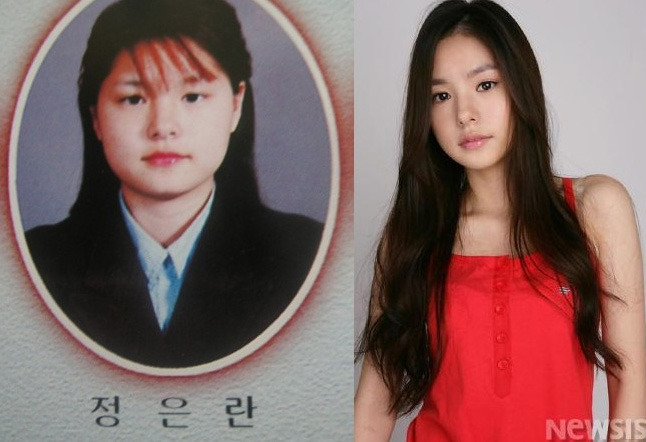 Celebrities who have had cosmetic surgery