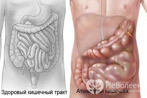 Атонія кишечника - види, причини, симптоми і лікування