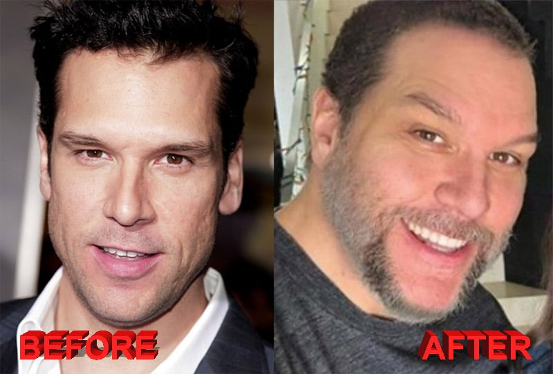 Before and after celebrities plastic surgery
