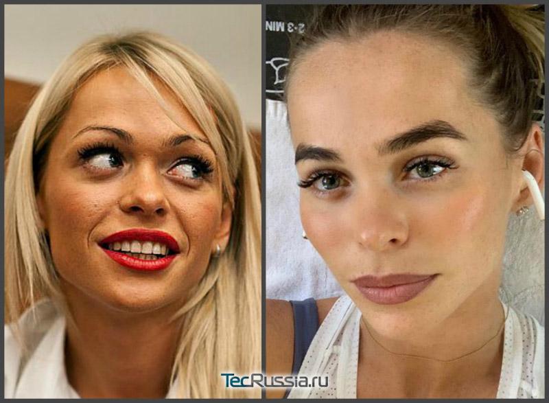 фото Хилькевич до и после уколов Ботокса