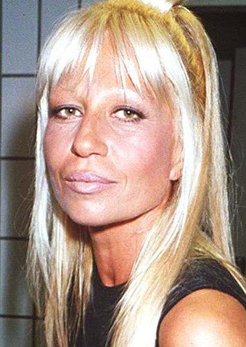 Донателла Версаче до операции фото
