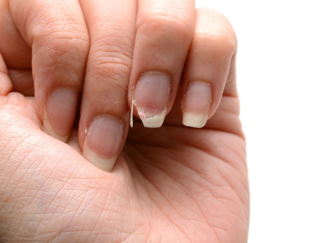 Cause for splitting fingernails